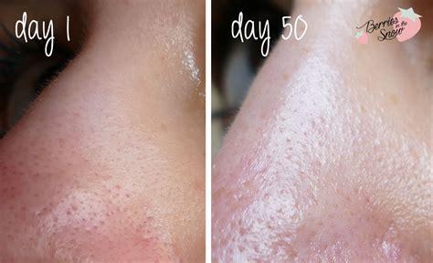 Serum Cosrx review cosrx bha summer pore minish serum berries in