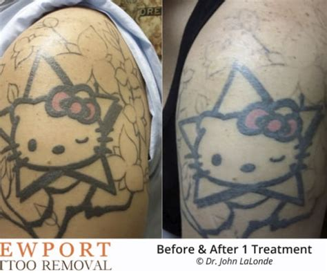 tattoo removal costa mesa best removal in orange county newport removal