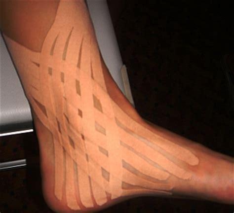 tendinite caviglia interna traumatologia nel pattinaggio a rotelle corsa utilizzo