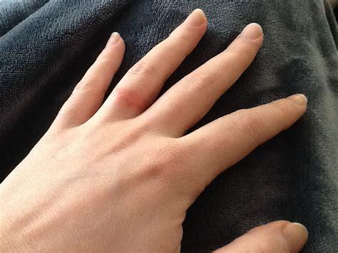 Wedding Ring Rash by Expensive Wedding Rings White Gold Wedding Ring Rash