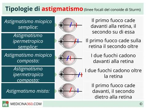 test astigmatismo test astigmatismo 28 images scopri di pi 249 sulla