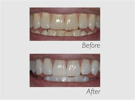 phillips zoom whitening  home kit identity dentistry