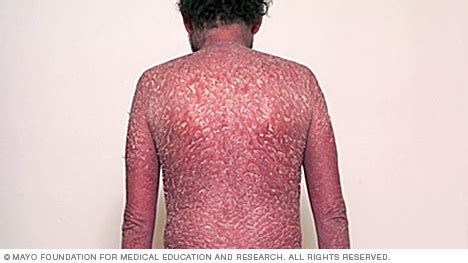 26 Best Images About Sponsorship erythrodermic psoriasis mayo clinic