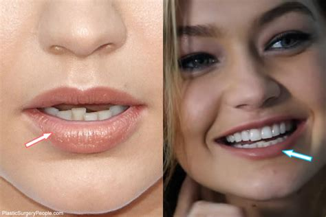 gigi hadid plastic surgery does gigi hadid have cosmetic surgery before after 2018