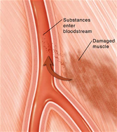 c section muscle damage krames online rhabdomyolysis