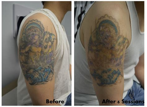 fade tattoo removal color removal after 6 sessions look at that