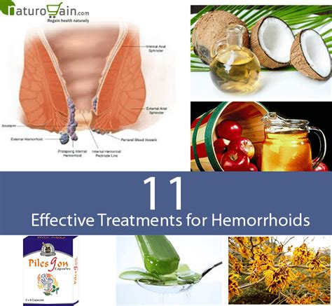 treatment for hemorrhoids 11 effective