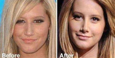 Beware Of Donatella by Best Plastic Surgery Plastic Surgery Nose