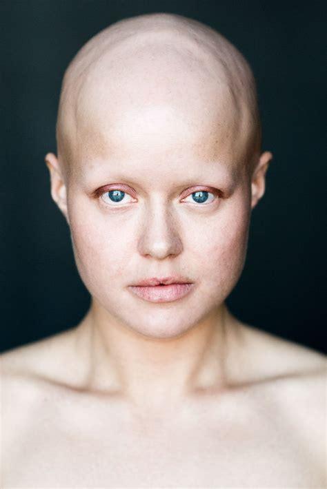 photos of women with no hair baldvin i photograph women with alopecia to break gender