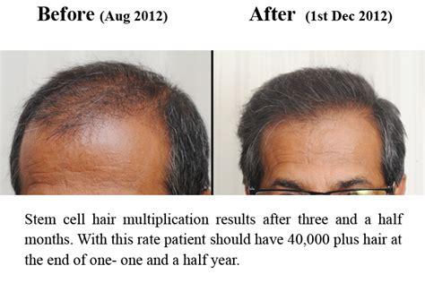hair cloning updates 2014 hair multiplication cloning 2014 hair cloning
