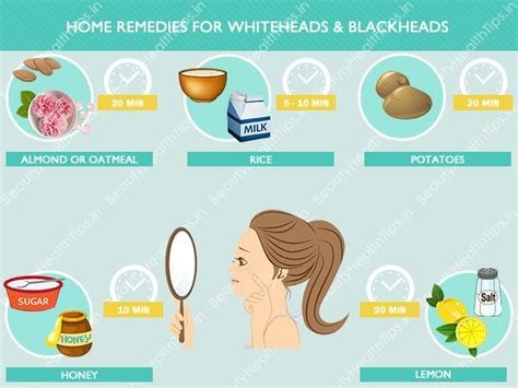 home remedies for whiteheads blackheads how to remove