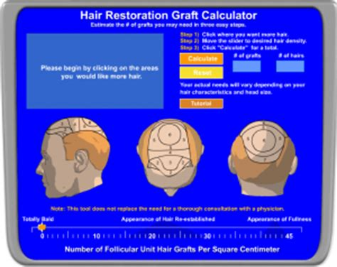 hair graft calculator