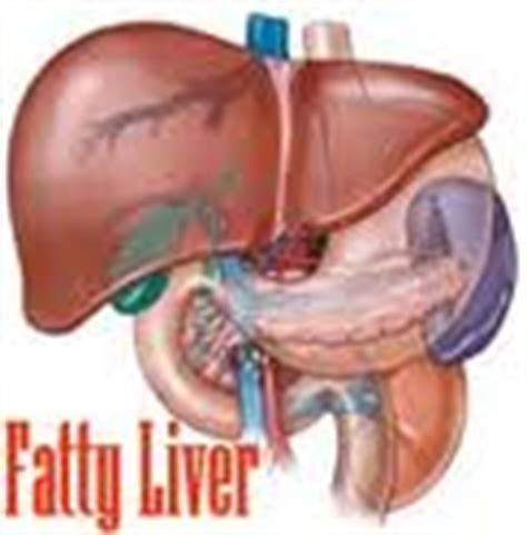 Lindsays Liver Damage by Liver Disease Fatty Liver Expectancy