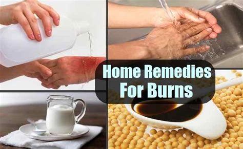 remedies for minor burns rupcare bangladesh s