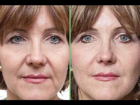 hairstyles for an aging face with jowls hairstyles to hide sagging jowls short hairstyle 2013