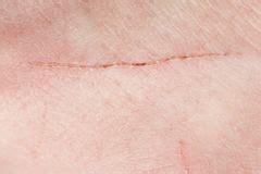 texture of human skin and scratch up macro stock photo colourbox texture of human skin and scratch stock photo image of bruise frayed 36669708