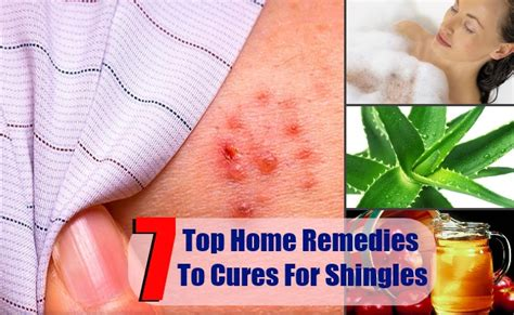 7 top home remedies to cures for shingles health care a to z