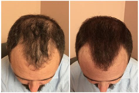 scalp micropigmentation to make hair ticker pictures scalp micropigmentation to make hair ticker pictures how