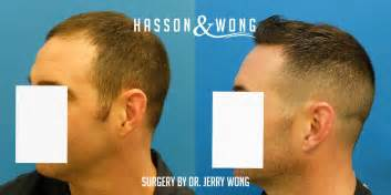 fue results with short hair fue results with short hair hasson and wong fue hair