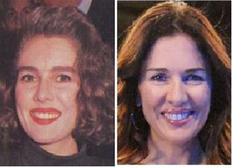 imagenes impactantes cirugias impactantes efectos de las cirug 237 as el antes y el despu 233 s