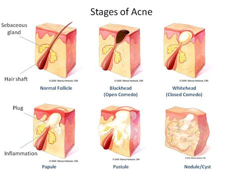 cystic acne diagram what is acne what causes acne what you need to