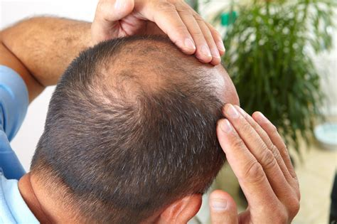 new hair growth discoveries new discovery explains cause of baldness hair loss