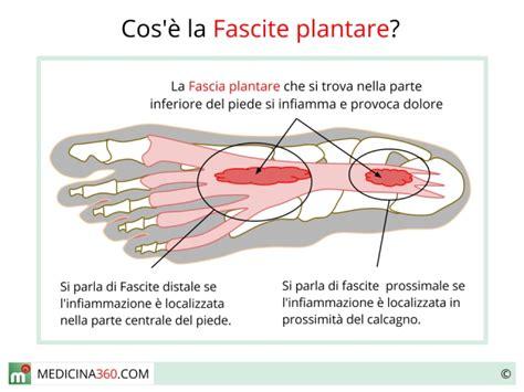 dolore arco plantare interno fascite plantare distale o prossimale sintomi cause e rimedi