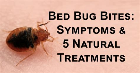 how do you treat bed bug bites 28 images tips to treat
