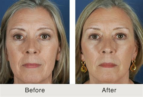Is A Mini Lift A Facelift Alternative by Mini Lift And Dermal Fillers In