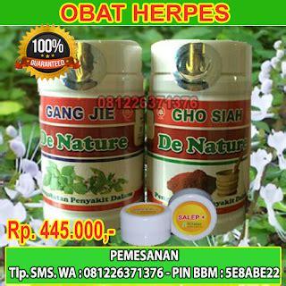 Obat Untuk Herpes Wanita obat herpes herbal alami dan uh