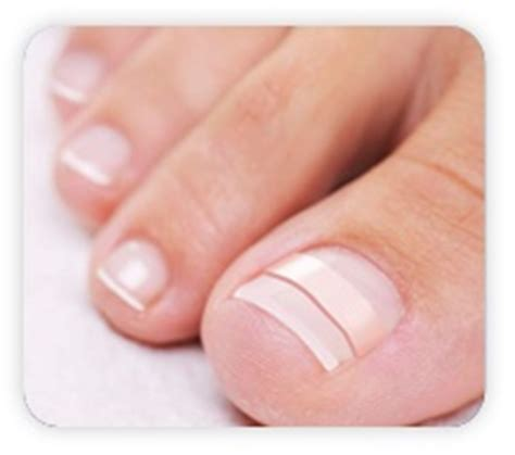 ingrown toenail home treatment health fitness other