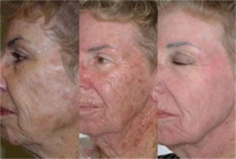 blu u light treatment for actinic keratosis omnilux anti aging serenity the beauty clinic