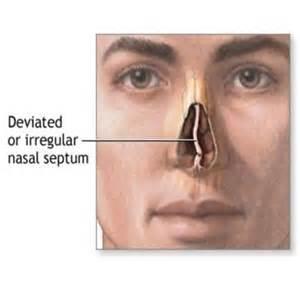 Treatment for deviated septum how to treat deviated septum diy