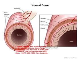 amicus illustration of amicus anatomy bowel intestine
