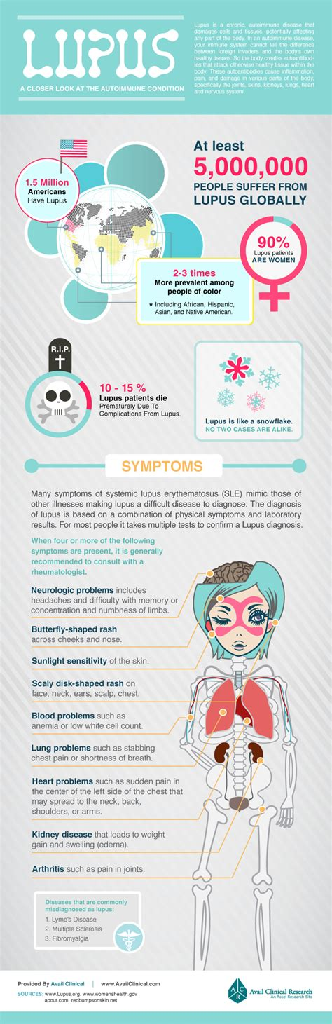 lupus can this autoimmune disease be treated naturally lupus a closer look at the autoimmune condition