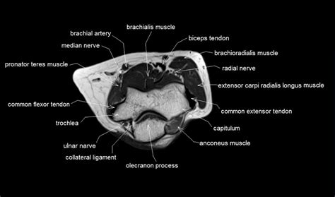 cross sectional radiology mri anatomy of elbow axial cross sectional anatomy of