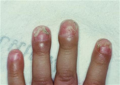 infected nail bed swollen finger infection treatment images frompo 1