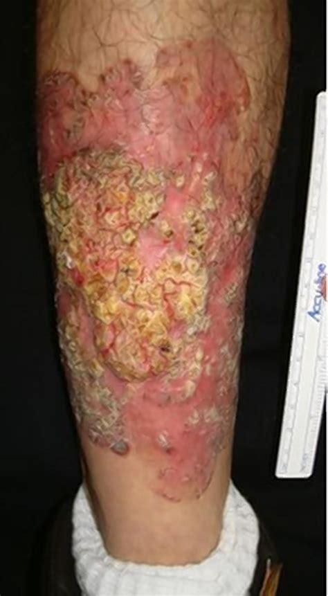 tumors on leg best hospitals mt sinai ny daily news