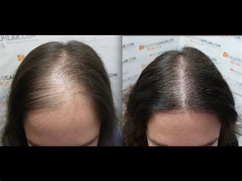 hair plantation hair style for woman 2102 fu s hair transplant by fue technique female