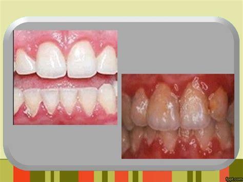 Pembersihan Karang Gigi Di Rumah Sakit ppt penyuluhan karang gigi karies