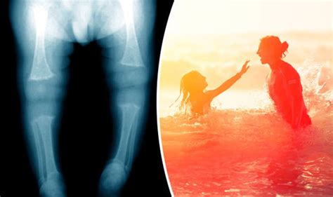 Whats Mysterious Condition by Rickets This Is To Blame For Mysterious Rise In Bone