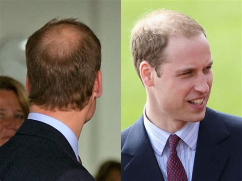 a man balding at the crownwhat is the best hair style for prince william hair loss and possible hair transplant