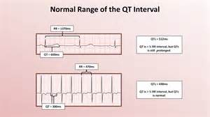 advanced ekgs the qt interval and qt