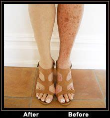 tattoo over varicose veins our accountant diane has problems with sunspots and age