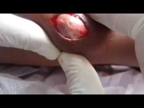 sebaceous cyst rupture sebaceous cyst extraction in region axillary