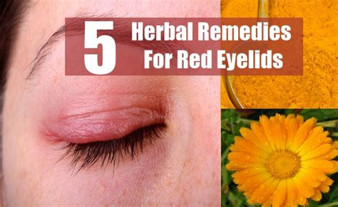 5 eyelids herbal remedies treatments cures
