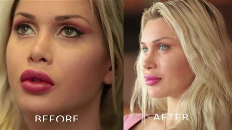 perms after surgery cosmetic surgery model pixee fox gets permanent green