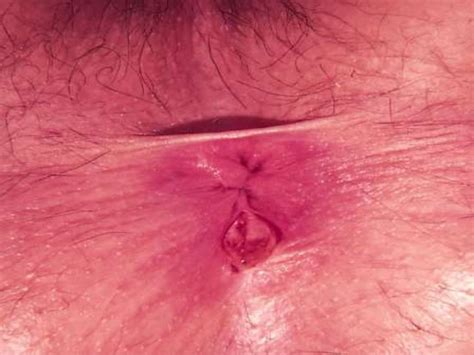 Blood In Stool Fissure by Rectal Bleeding