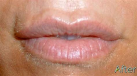 lip tattoo removal quot what can i expect after a removal quot