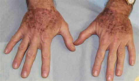enlever tattoo laser quebec rem 232 de naturel pour 233 liminer les taches brunes newsmag